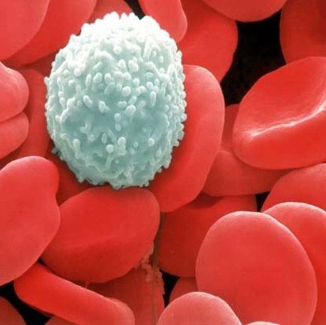 Анализ крови на мочевую кислоту: показания для сдачи, нормы и расшифровка результатов