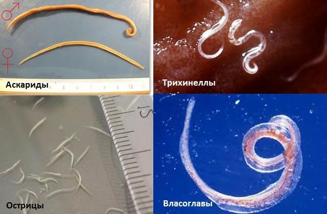 Анализ крови на глисты и паразиты: методы исследований, ИФА, кому и как сдавать?