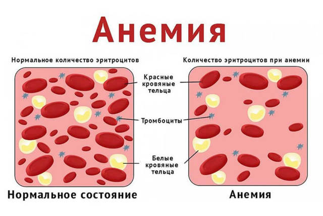 Анемия 1 степени у детей и врослых: лечение и симптомы