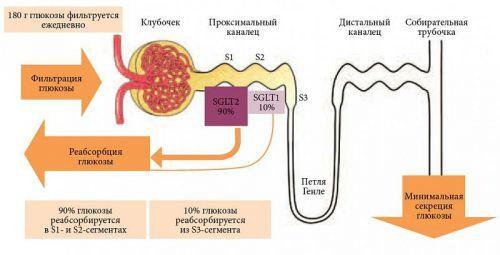 Глюкоза в моче: причины, симптомы, лечение глюкозурии