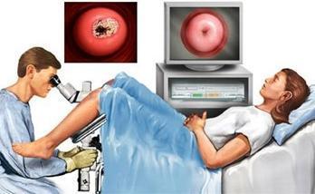Полип эндометрия: фото в матке, симтомы болезни, причины возникновения и последующее лечение, как выглядит, классификация (железистый, злокачественный, фиброзный)