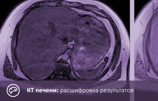 Как проводятся манипуляция и подготовка к компьютерной томографии печени и кт печени с контрастированием