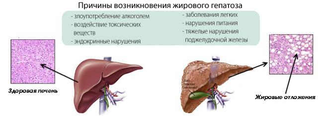 Гепатоз печени: что это такое, чем и как вылечить, чем опасен для организма