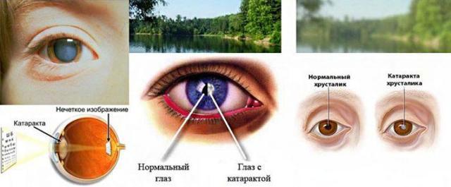 Капли и таблетки от глазного давления: список лучших от ...