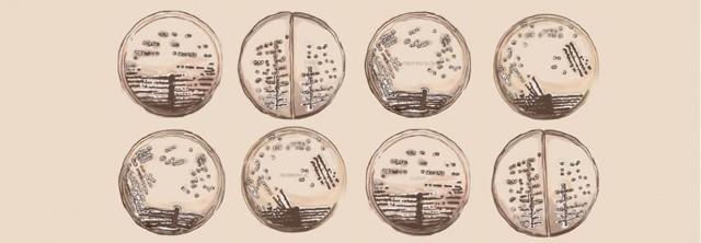 Бактерии в моче: что это значит, причины появления и лечение