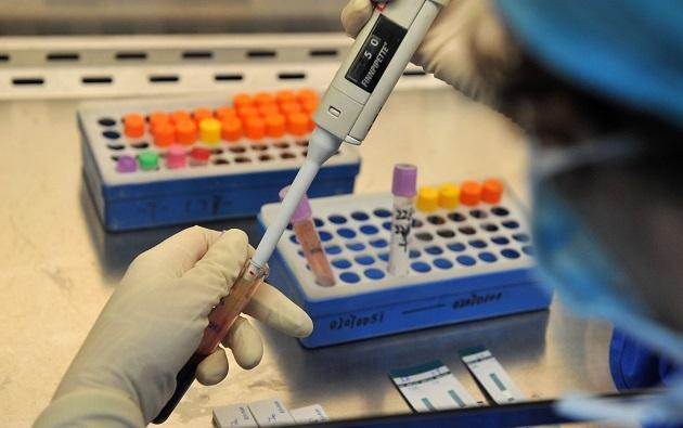Rdw в анализе крови: что это, почему повышен. Норма и расшифровка результата