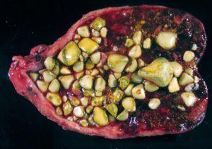 Камни в печени: причины образования, методы диагностики, профилактика и лечение, диета