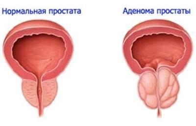 Что такое пиелоэктазия: симптомы и причины заболевания