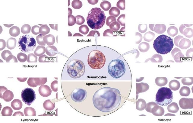 Незрелые гранулоциты повышены или понижены: что это значит?