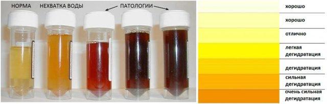 Моча при цистите у женщин: фото различных оттенков урины, состав — белок, запах, лейкоциты