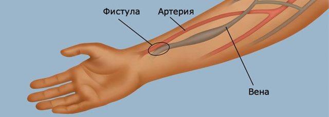 Гемодиализ что это такое: артериовенозная фистула, сколько живут, стоимость использования аппарата, показания и противопоказания, отзывы больных на форуме
