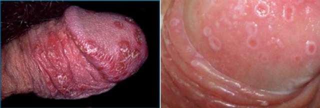 Трихомониаз у мужчин: симптомы, лечение, первые признаки заболевания, фотографии нелуга, схема лечения препаратами, как и через сколько дней проявляется болезнь