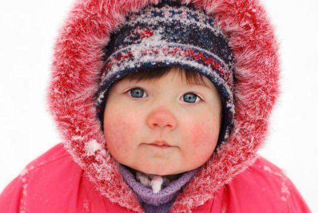 Аллергии на мороз: фото у детей и взрослых на руках и лице