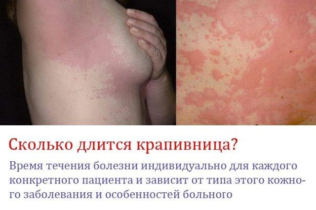 Аллергическая крапивница у детей: основные причины и методы лечения