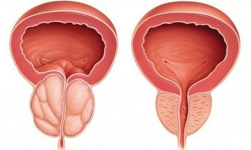 Геморрагический цистит: особенности у женщин, детей и мужчин, симптомы и лечение заболевания, код по мкб 10.