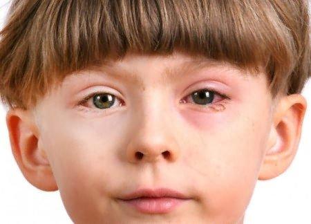 Аллергия на глазах: как лечить симптомы - отек, покраснения и зуд