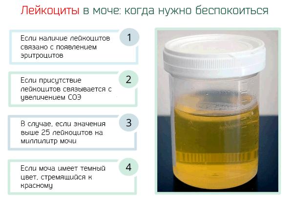 Анализ мочи при цистите: белок в моче, цвет, запах, лейкоциты и другие показатели.