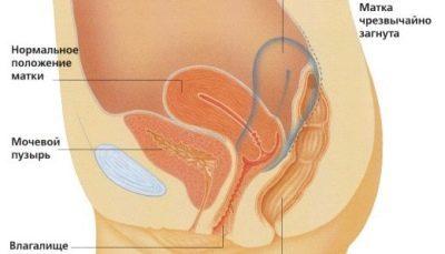Мутная моча: причины у женщин, опасность для беременности
