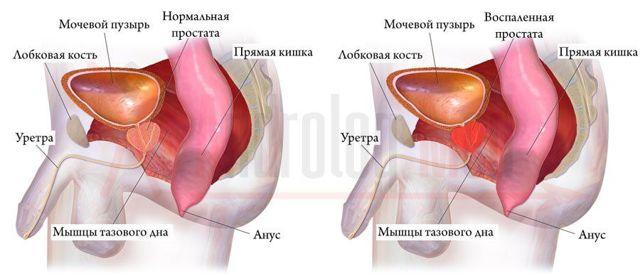 Препараты от частого мочеиспускания и простатита у мужчин дистрептаза простатит