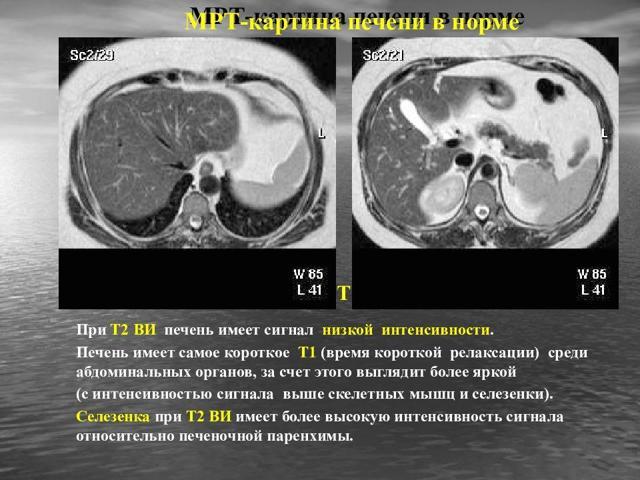 Что показывает МРТ печени с контрастом или без него, и как к нему подготовиться
