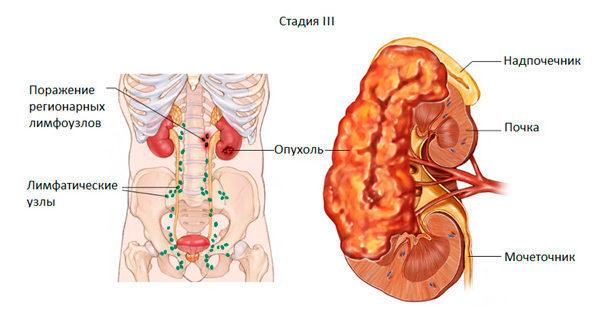 Рак почки: симптомы, диагностика, прогноз и лечение