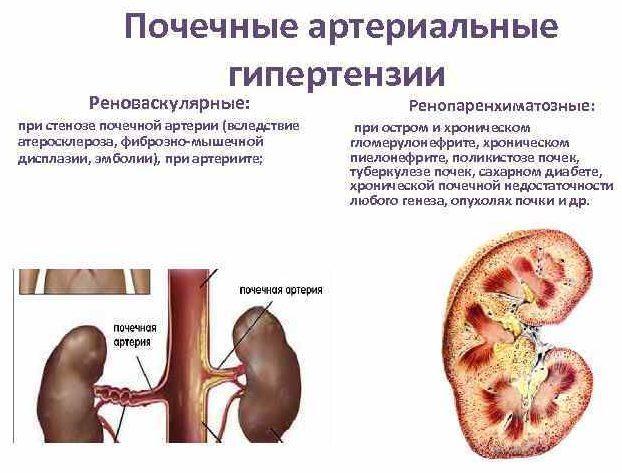 Почечная артериальная гипертензия симптомы и лечение