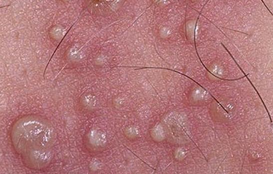 Генитальный герпес: как выглядят фотографии болезни, лечение у мужчин, симптомы у женщин, особенности при беременности, мазь от недуга