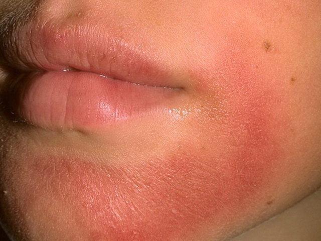 Периоральный дерматит: фото на лице, подбородке и у детей