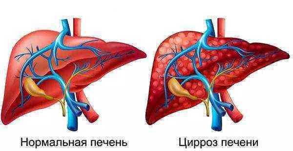 Декомпенсированный цирроз печени: что это, причины его возникновения, симптомы, методы лечения и прогнозы продолжительности жизни