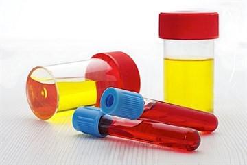 Для чего делают прививки от гепатита B новорождённым