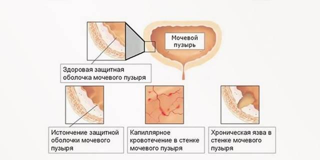 Цистит от переохлаждения: причины, симптомы, лечение медикаментами и средствами народной медицины в домашних условиях