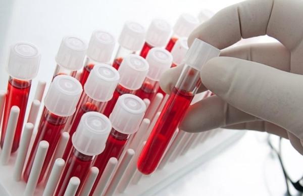 Хронический гломерулонефрит: место в МКБ, клинические рекомендации, какое лечение назначают, диета при положительных симптомах, примеры историй болезни