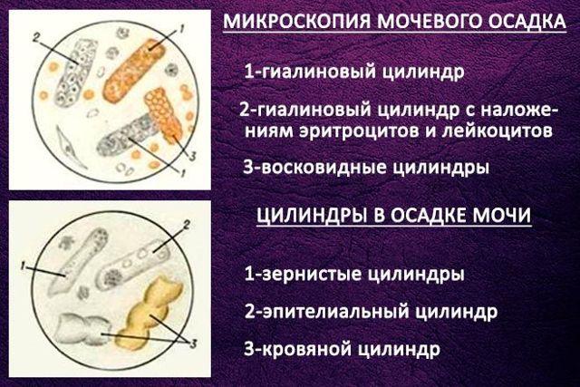 Анализ мочи по Нечипоренко, что это такое, алгоритм проведения, для чего нужен такой метод диагностики