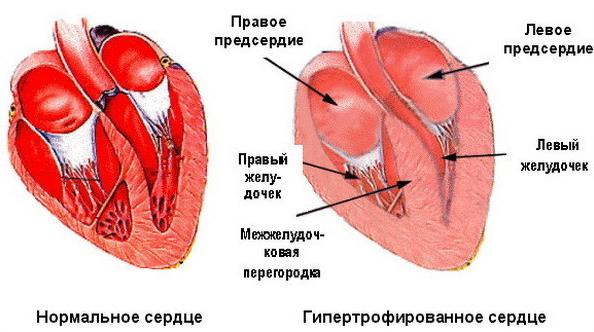 Отличия гипертензии и гипертонии: классификация болезней, диагностика, отзывы кардиолога