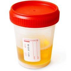 Общий анализ крови при беременности: норма и расшифровка показателей