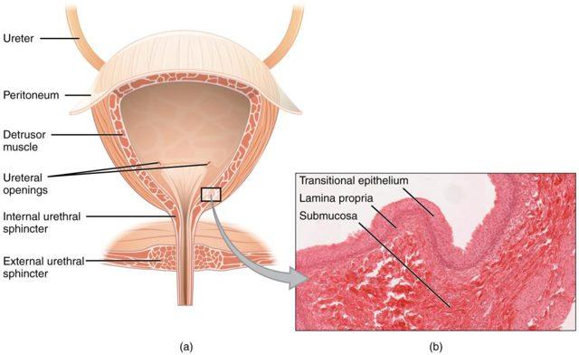 Цистит с кровью у женщин: причины, насколько это опасно и что делать