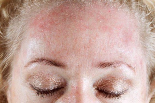 Аллергия на коже - красные пятна чешутся, лечение мазью