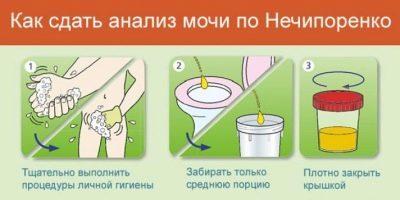 Как сдавать мочу по нечипоренко при беременности, что показывает и как собирать анализнализ мочи по Нечипоренко при беременности, как правильно собирать и сдавать материал