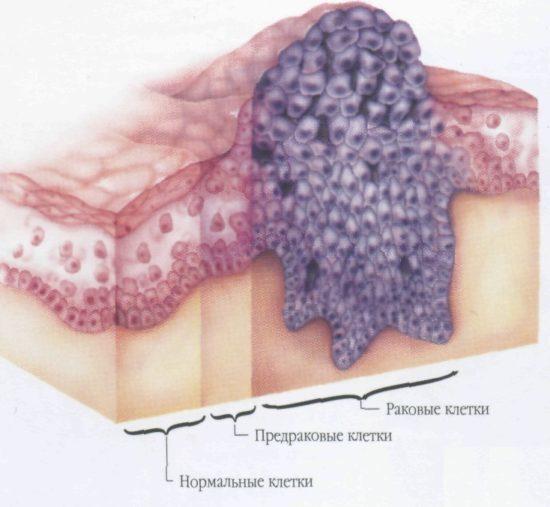 Рак полового члена: как выглядит на фотографиях, симптомы у мужчин, первые признаки поражения органов пениса и головки, плоскоклеточная разновидность