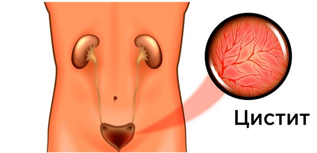 Воспаление мочевого пузыря у мужчин: симптомы, лечение, таблетки, как и чем лечить цистит у мужчин