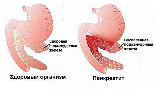 Диастаза крови: норма у взрослых и детей. Причины повышения и снижения в анализе