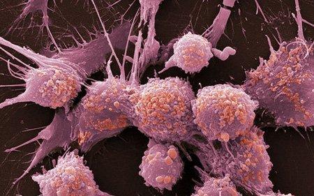 Рак мочевого пузыря у мужчин: симптомы и признаки недуга, лечение с помощью химиотерапии, фото, что говорят на форумах, диетическое питание, метастазы, профилактика заболевания