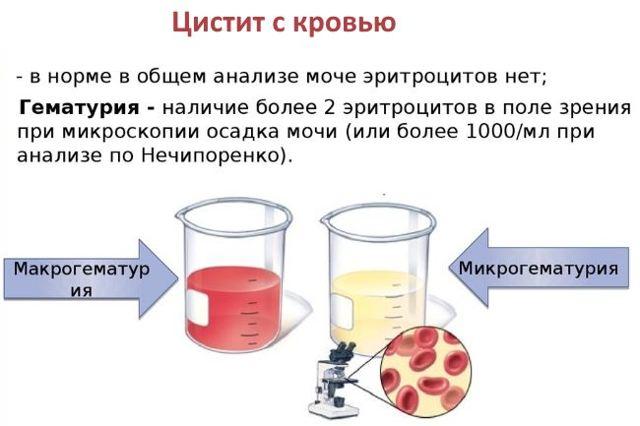 Острый цистит: причины, симптомы, лечение заболевания; цистит с кровью - лечение в домашних условиях (препараты, антибиотики, свечи).