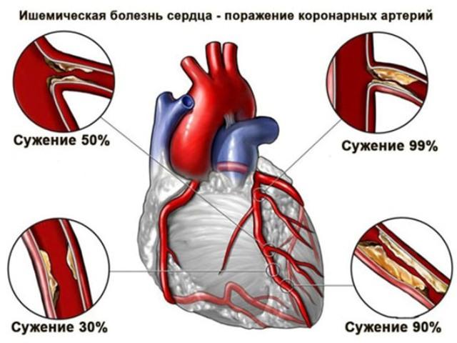 Бьется сердце — Причины учащенного сердцебиения, причины и методы лечения, советы врачей