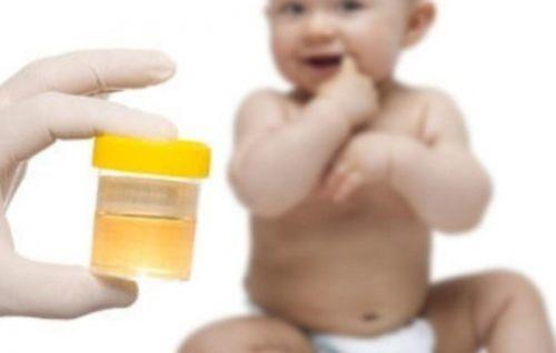Ацетон в моче у взрослых: причины, насколько это опасно и что делать