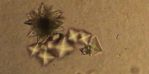 Фосфаты (аморфные кристаллы) в моче: что это значит, причины появления и что делать