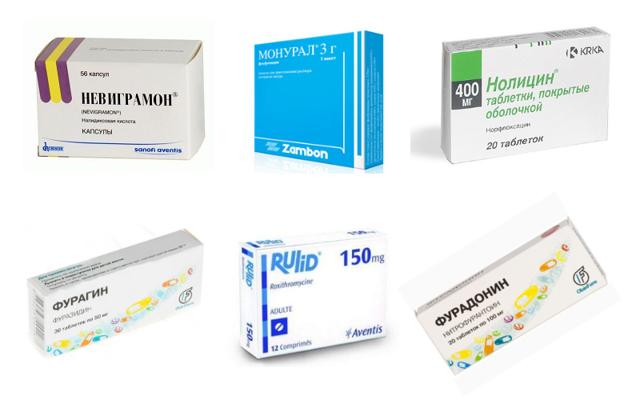 Обезболивающие при цистите: чем и как снять боли, медицинские препараты и нетрадиционные способы избавления