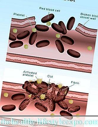 О чем говорят низкие тромбоциты (тромбоцепиния) в крови, причины низкого уровня тромбоцитов