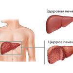 Основные стадии цирроза печени, какие методы диагностики и лечения применимы на каждой стадии, возможно ли излечение на последних стадиях