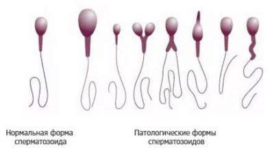 Спермограмма: расшифровка, как правильно сдавать анализ, нормальные показатели, плохие результаты, что показывает, морфология